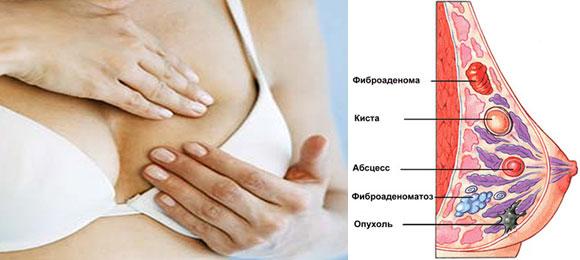 фото груди у мамографа